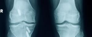 Ankle surgery brisbane - dr greg sterling