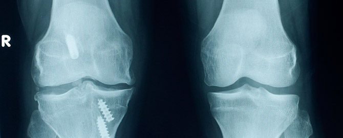 Knee Arthroscopy Brisbane