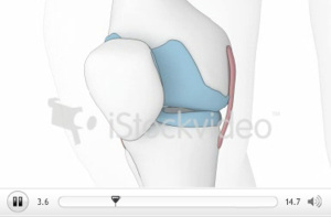 Knee surgeon brisbane - Greg Sterling Orthopaedics