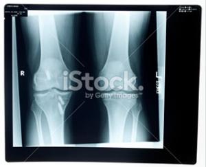 Knee surgeon brisbane - Greg Sterling Orthopaedics
