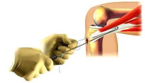 Knee Arthroscopy Brisbane - Greg Sterling Orthopaedics