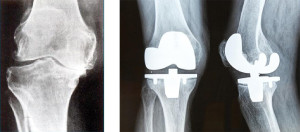 Knee Arthroscopy Brisbane - Greg Sterling Orthopaedics