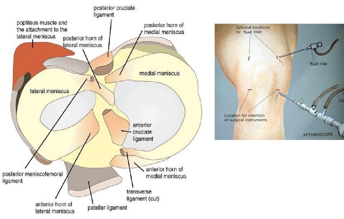 Microsoft Word - surgery_knee_arthroscopy.rtf