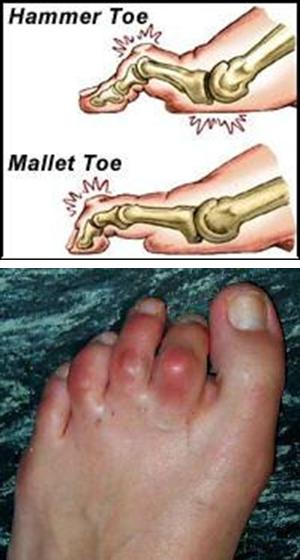 hammer toe correction  u0026 plantar plate repair