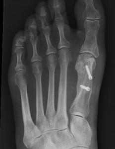 Foot Surgery brisbane - Greg Sterling Orthopaedics