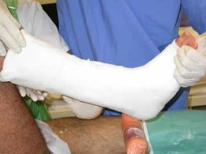 Knee replacement surgery - Greg Sterling Orthopaedics