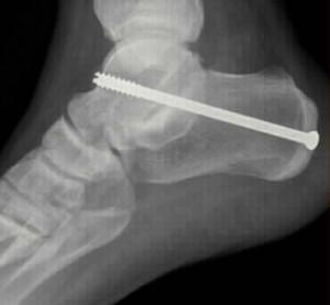 Joint Fusion Surgery Brisbane - Dr Greg sterling orthopaedics