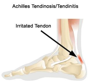 Microsoft Word - surgery_achilles_tendon_debridement-3.rtf