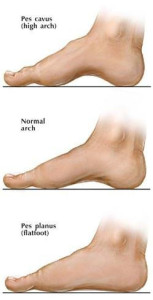 foot ankle surgery brisbane - dr greg sterling orthopaedics