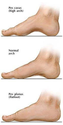 Microsoft Word - surgery_adult_flatfoot.rtf
