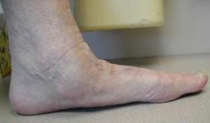 Bunion surgery brisbane Dr Greg Sterling Orthopaedics