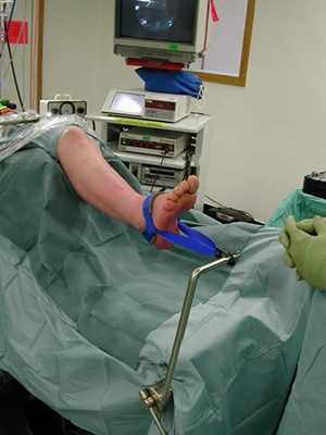 Microsoft Word - surgery_ankle_arthrodesis.rtf