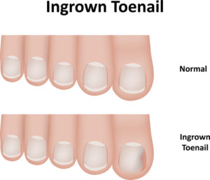 Illustration of ingrown toenail vs. normal