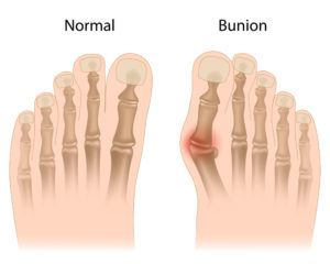 Picture of normal foot vs. bunion