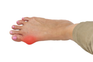 foot with bunion highlighted