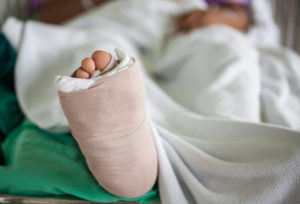 resting bandaged foot after bunion removal