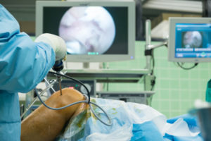 arthroscopy procedure being performed